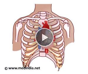 Coronary Artery Bypass Surgery