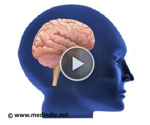 Epilepsy - Animation and Slides