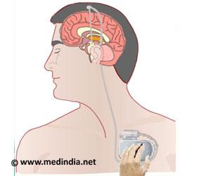 Parkinson's Disease - Surgical Treatment