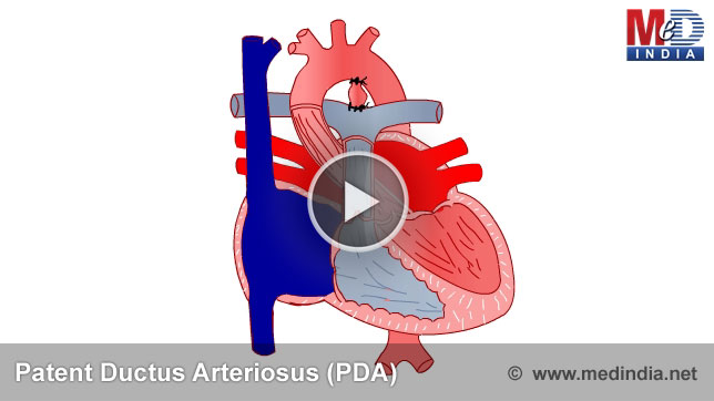 Ductus Arteriosus Botalli Ductus-arteriosus.jpg