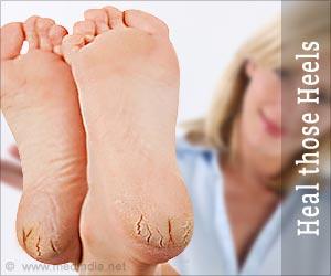Heal those Heels: Naturally