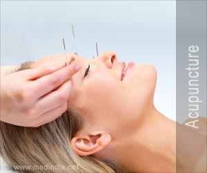 Acupuncture Specialty