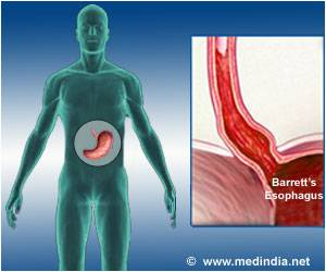 Incidence of Cancer in Patients With Barrett�s Esophagus may be Lower Than Previously Reported