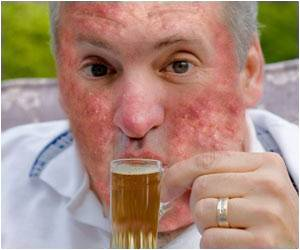 Want To Know How You Would Look Like After 10 Years Of Downing Alcohol? Check Out A Mobile Application