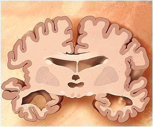 Different Brain Atrophy Patterns Explains Variability in Alzheimer's Disease Symptoms