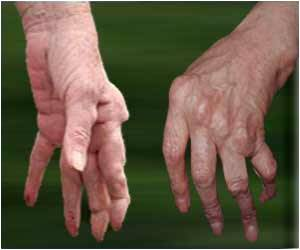 Risk of Rheumatoid Arthritis Increases in the Presence of Lifestyle Conditions