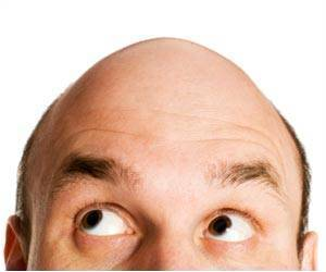 Men More Scared of Baldness Than Impotence