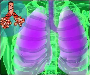 Cellular 'Off' Switch Linked to Asthma Attacks Identified