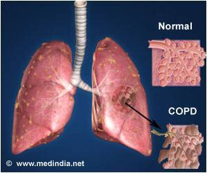 Association Between Changes in Physical Activity and Disease Progression in COPD Patients