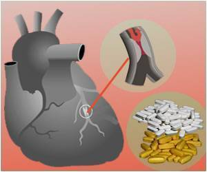 Calcium Supplements Raise the Risk of Plaque Buildup in Arteries, Heart Damage