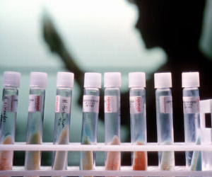 Delhi Will Have Five Mega Labs for Pathological Examinations by End of 2015