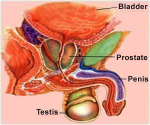 50% Prostate Cancer Cases Wrongly Classified Initially: Study