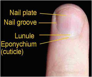 Why Some People Don't Have Fingerprints