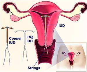 Study Finds IUDs, Implants More Effective Than Pill