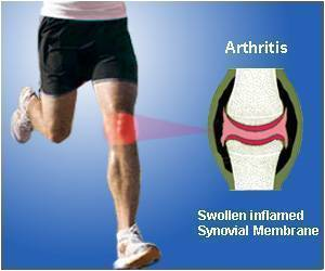 Risk of Knee Osteoarthritis High in Athletes Participating in Certain Sports