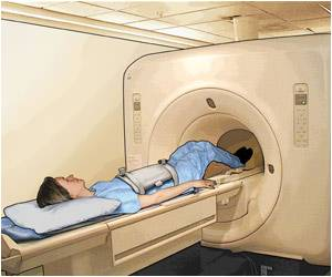 MRI Scan may Now Detect Brown Fat!