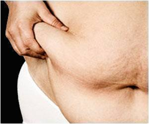 Visceral Fat Linked to Intestinal Cancer