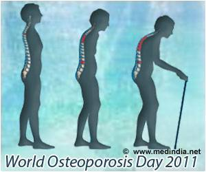 Simple Intervention Used By U of A Medical Researchers to Improve Osteoporosis Treatment Rates