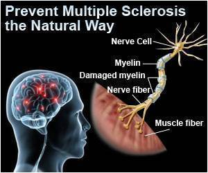 Multiple Sclerosis Risk 3 Months After Shingles Attack: Research