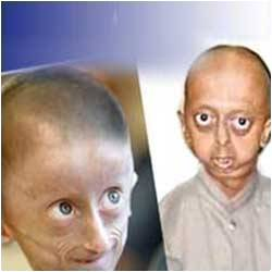 12- Year- Old South African Girl Battles Progeria , a Rare Premature Ageing Disease