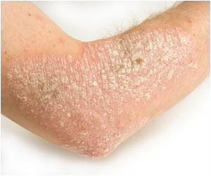 Promising New Target for Treatment of Psoriasis is Safe