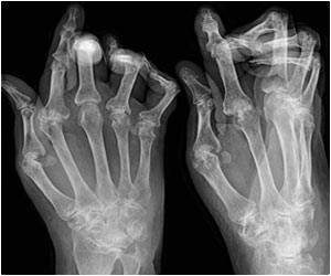 Young Women With Rheumatoid Arthritis at Risk of Fractures