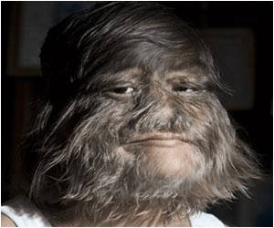 Supatra Sasuphan is World's Hairiest Girl