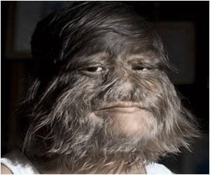 Supatra Sasuphan is World's Hairiest Girl