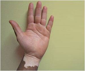 New Surgical Techniques Could Treat Vitiligo More Effectively