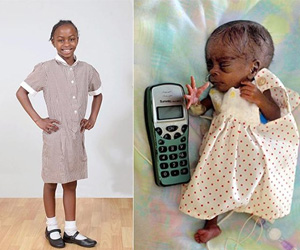 Meet the Ten Year Old Who is UK's Tiniest Baby That Made It