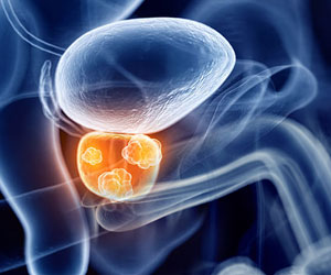 Resistance of Prostate Cancer to Drugs, Associated With Genetic Factors