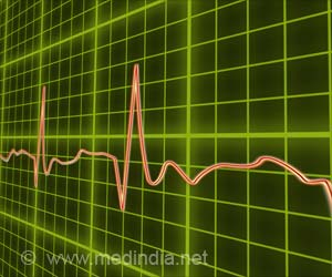 AI-Enabled ECG may be Able to Spot Signs of Atrial Fibrillation