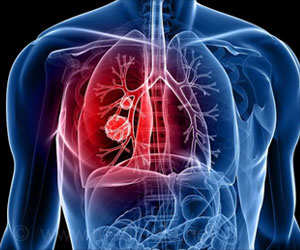 Insight into How Lung Cancer Spreads in the Body