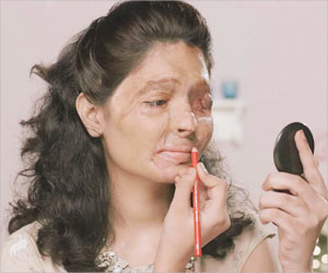 Concentrated Acid is Easier to Get As Beauty Products in India: Bold Acid Attack Survivor