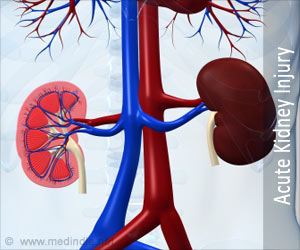 Acute Kidney Injury May Increase Dementia Risk