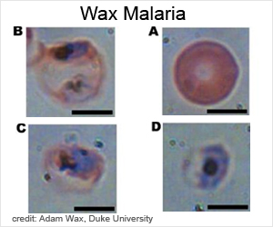 Holographic Imaging Helps Diagnose Malaria
