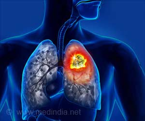 New Target for the Most Common Type of Lung Cancer Identified