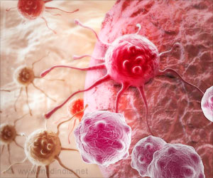 Key Protein That Spreads Breast Cancer Cells Identified