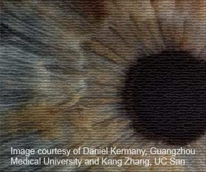Artificial Intelligence to Speed Up Diagnosis of Eye Diseases