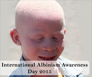 International Albinism Awareness Day 2015