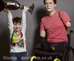 Alex Lewis Regains Face After Losing His Limbs and Lips to a Deadly Infection