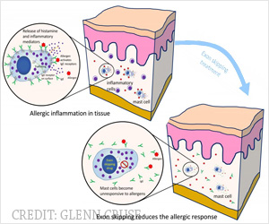 Treatment for Allergic Response by Targeting Mast Cells