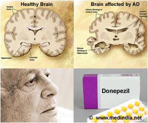Donepezil may be Useful in Moderate-to-Severe Alzheimer's Disease