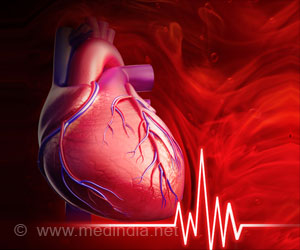 Around 10 Percent of Chinese Adults Have High Risk of Heart Disease
