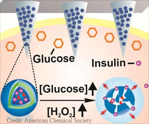 "Painless ""Smart Patch"" Developed to Deliver Insulin"