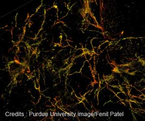 New Insight on Alzheimer's Disease: Development in 3D Super-resolution Imaging