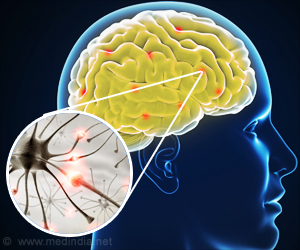 Novel Mechanism That Could Lead to Therapies for Amyotrophic Lateral Sclerosis