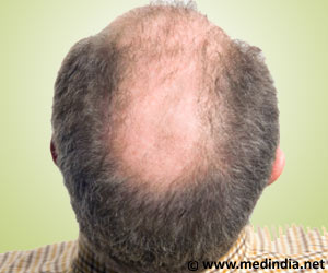 "Injecting Blood into Scalp is New Baldness ""Cure?"""