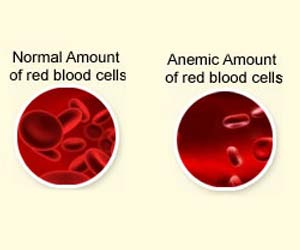 Anemia may Increase Risk of Dementia