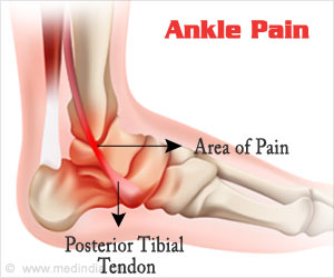 New Anatomic Structure in the Ankle Joint Identified